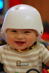 Flat headed baby wearing a helmet